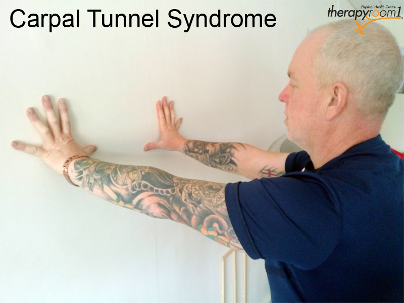 carpal-tunnel Syndrome